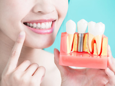 Reviews for Dental Implants