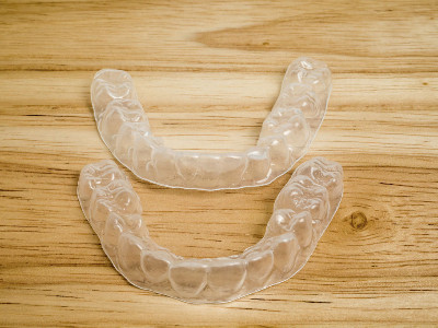 Reviews for Retainers
