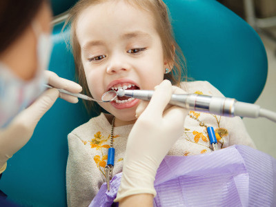 Tooth Polishers