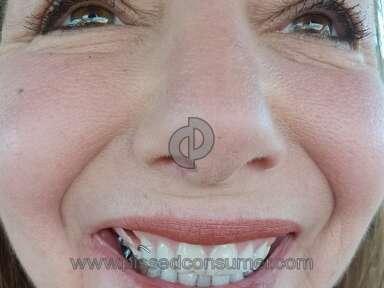 Aspen Dental Dentures review 262892