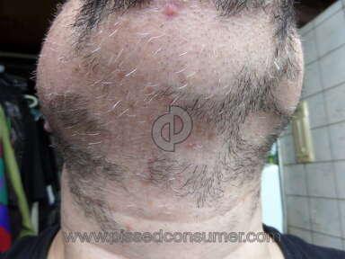 Sona Medspa Pixel Laser Body Treatment review 131575