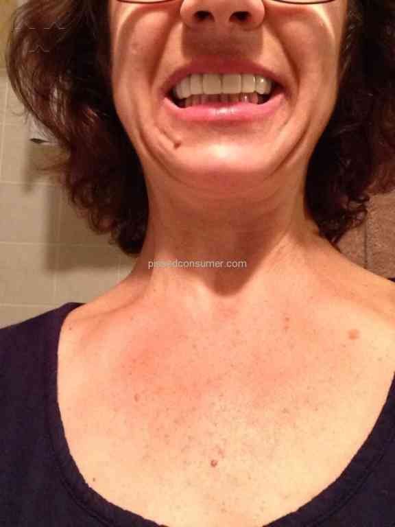 128 Snap On Smile Reviews and Complaints @ Pissed Consumer