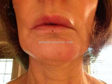 Sensodyne - Swelling of lips, above and below lips and cracks in the corners of my mouth