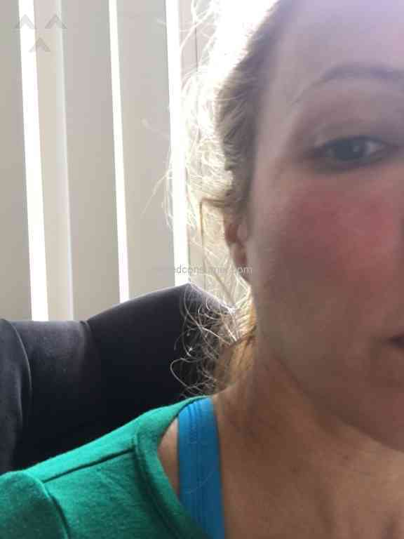19 Rodan And Fields Cream Reviews And Complaints Pissed Consumer