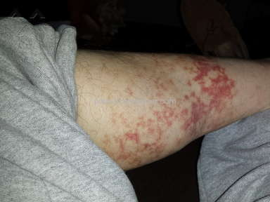 MyPillow caused bad caused of hives