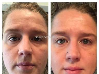 Rodan and Fields - Reverse Beauty Set Review from Denver, Colorado