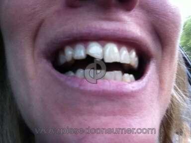 Aspen Dental Dental Services review 139113