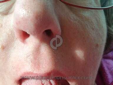 Sensodyne - Tongue cracks and sores