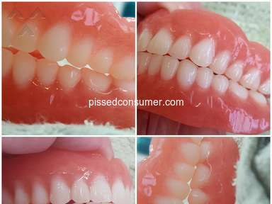 Sexton Dental Clinic - Bad fitting dentures, chewing surface does not meet