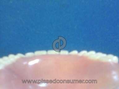 Aspen Dental Dentures review 16083