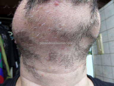 Sona Medspa Pixel Laser Body Treatment review 131573