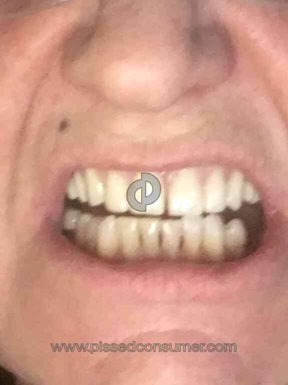 Aspen Dental - The worst care ever, denture is horrible, I'm so