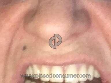 Aspen Dental Dentures review 254914