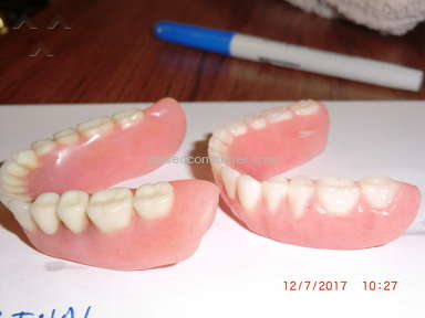 Aspen Dental Dentures review 247248