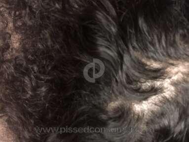 Suave - Hair loss, terrible dandruff, thinning kink hair