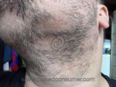 Sona Medspa Pixel Laser Body Treatment review 131577