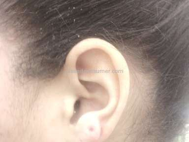 Piercing Pagoda - Ear lobe infections