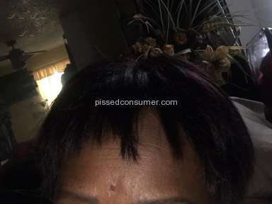 Hair Club Hair Replacement Procedure review 135995