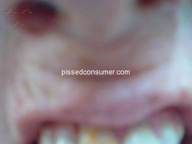 Aspen Dental Dental Filling review 287048