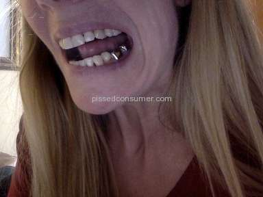Brio Dental Dental Crown Service review 165052