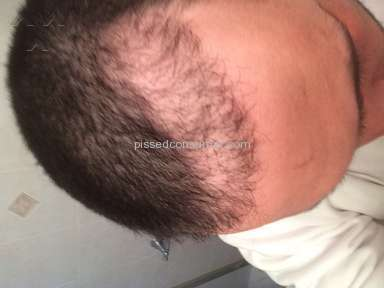 Bosley - Hair Transplant Review
