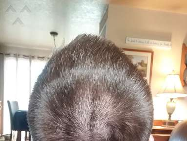 Sport Clips - Massive bald streaks on back of head