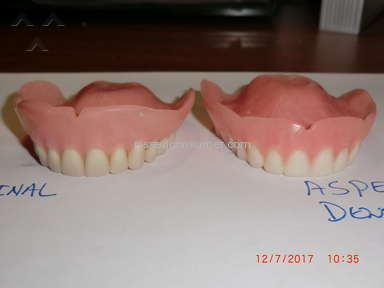 Aspen Dental Dentures review 247256