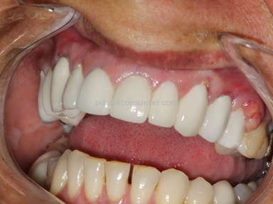 Complaint: Terrible Experience Cancun Cosmetic Dentistry German Arzate