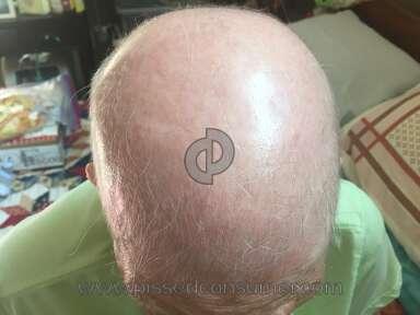 Keranique Hair Care review 165390
