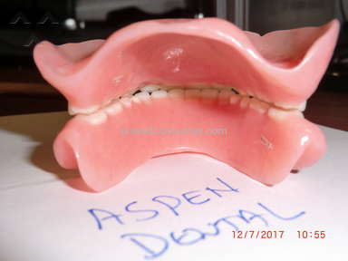 Aspen Dental Dentures review 247260