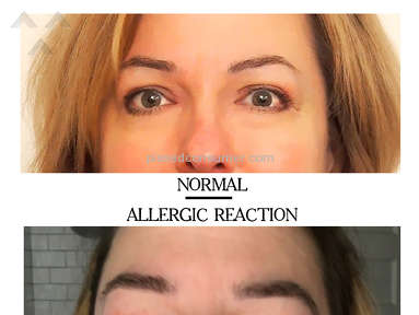 MyPillow - SEVERE ALLERGIC REACTION... BEWARE!