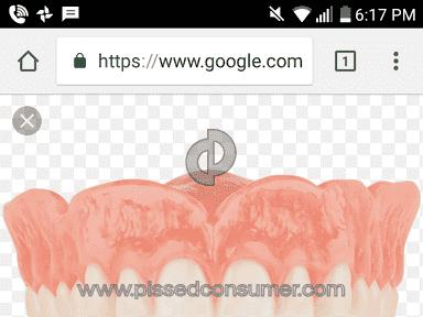 Aspen Dental Dentures review 297652