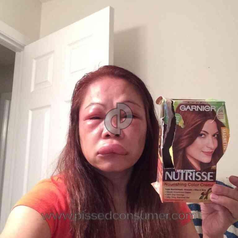 Garnier Suffered From Ganier Hair Color Dec 26 2015 Pissed Consumer