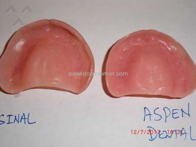 Aspen Dental Dentures review 247246