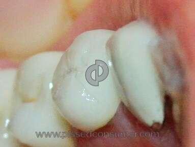 Aspen Dental Hospitals, Clinics and Medical Centers review 37913