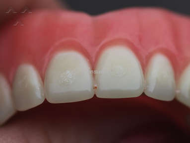 Affordable Dentures Dentures review 130625