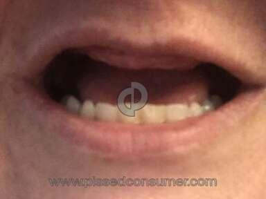 Aspen Dental Dentistry Doctor review 314120