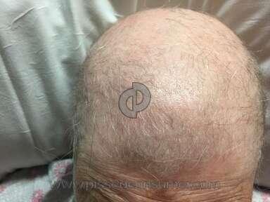 Keranique Hair Care review 165392