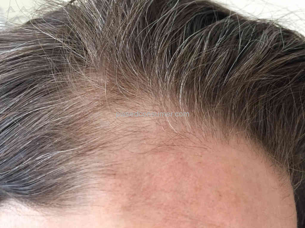 7 Tag Wen Hair Loss Reviews And Complaints Pissed Consumer