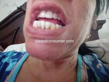 Aspen Dental - Crowns , partials , fraud