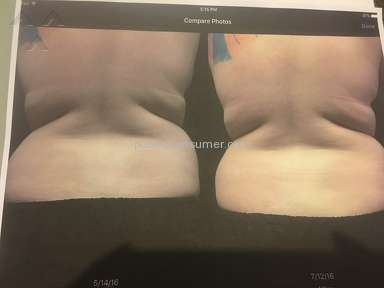 Ideal Image Coolsculpting Body Treatment review 159000