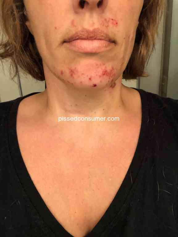 Chemical relief nair burn How To