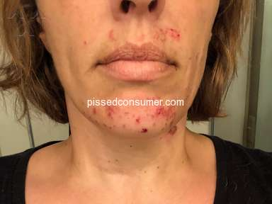 Nair - Caused Severe Face, Neck, Chin Burns and long ingrown hairs
