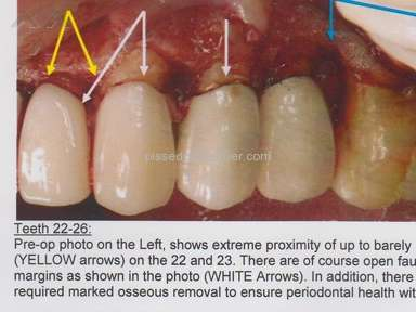 Cancun Cosmetic Dentistry Hospitals, Clinics and Medical Centers, Doctors review 53577