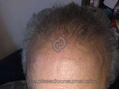 Bosley - Not enough hair transplanted