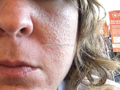 Rodan and Fields Destroyed My Skin & Life